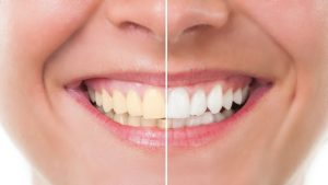 Katy TX Affordable Dental Implants