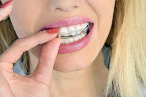 Family Orthodontist 77379
