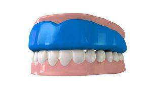 Emergency Dentist Near Me Spring TX