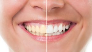 Houston TX teeth whitening near me