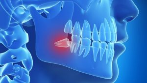 Trusted Oral Surgery Procedures