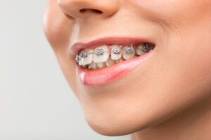 Post-Op Care for Tooth Extractions